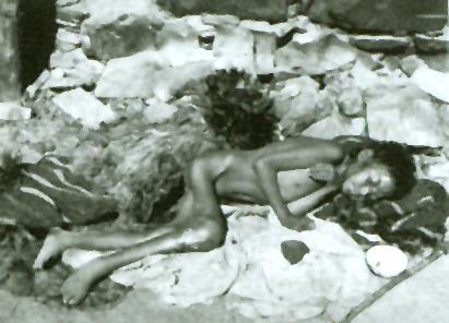 Голодающий больной ребенок в старом Тибете